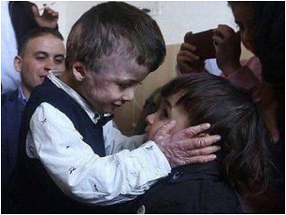 Ahmed Dawabsheh cicatrizando, único sobreviviente de ataque terrorista de los colonos. Foto: Rebelión.